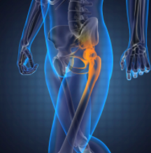 the leading Robotic Knee Surgery Adelaide